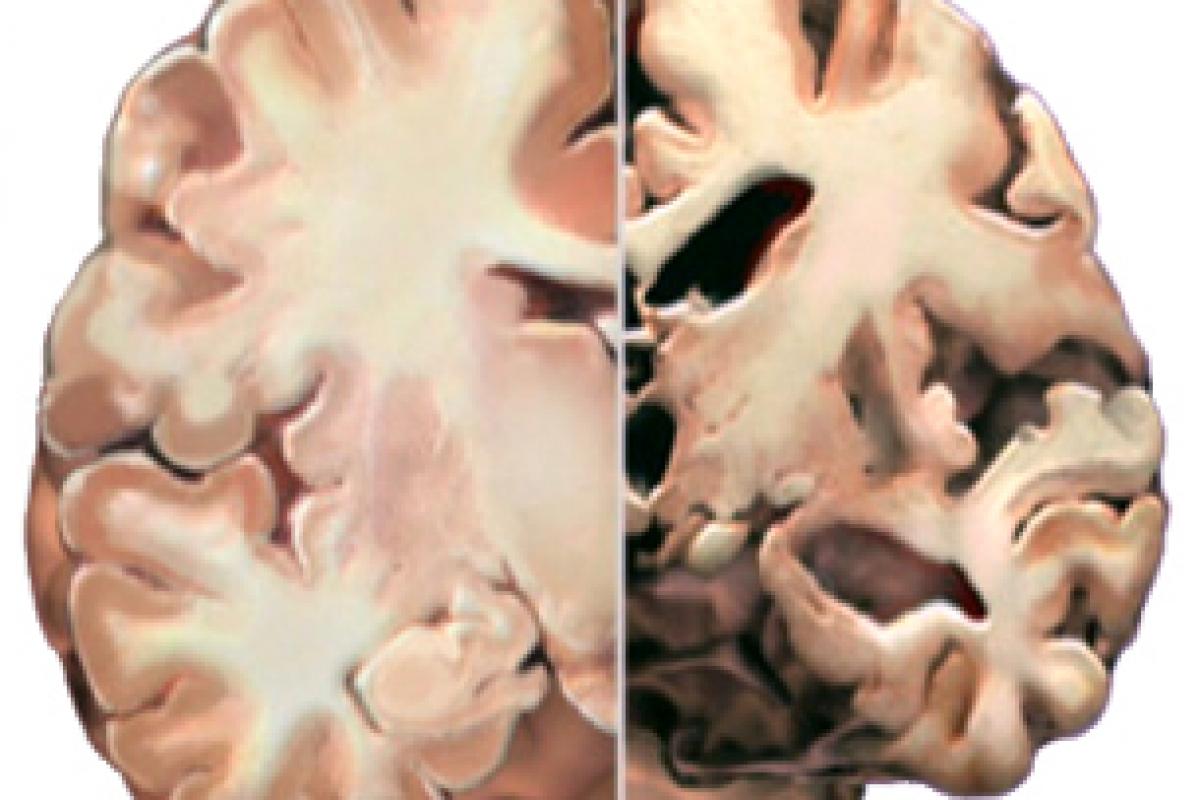 Η μαμά της μαμάς μου: Alzheimer, μια νόσος που μας αφορά όλους!