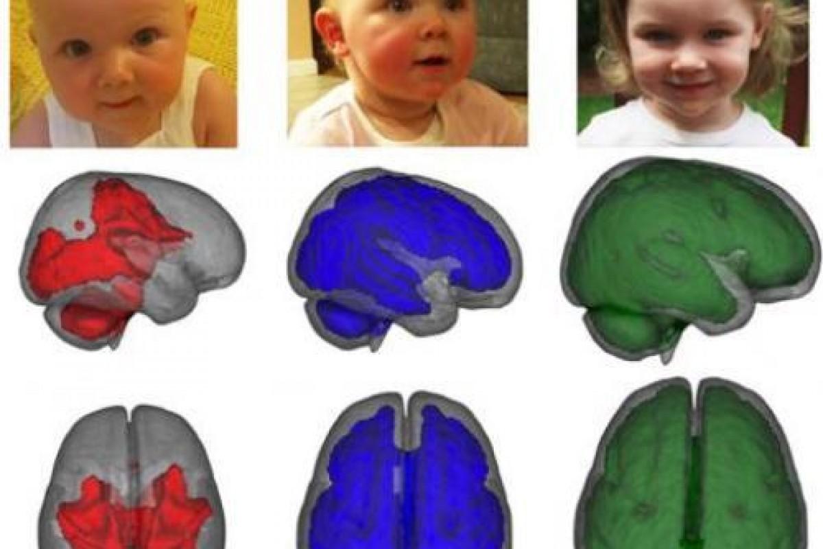 Ο εγκέφαλος των μωρών που θηλάζουν παρουσιάζει πρώιμη ανάπτυξη