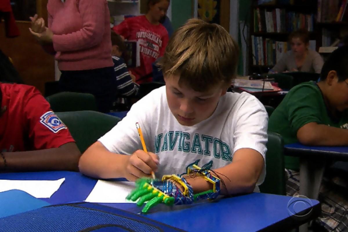 Μπαμπάς… εκτυπώνει ένα προσθετικό χέρι για τον 12χρονο γιο του