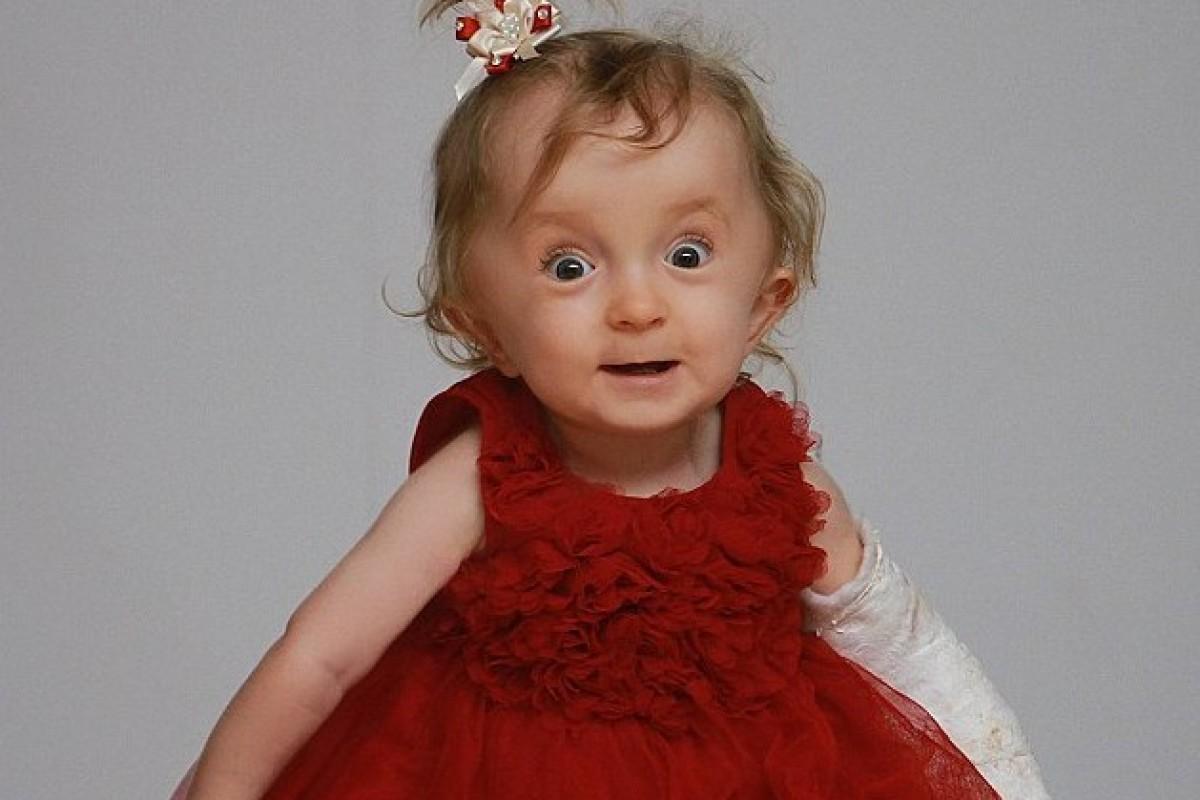 Millie Simpson: Το κοριτσάκι που γεννήθηκε με 30 σπασμένα οστά