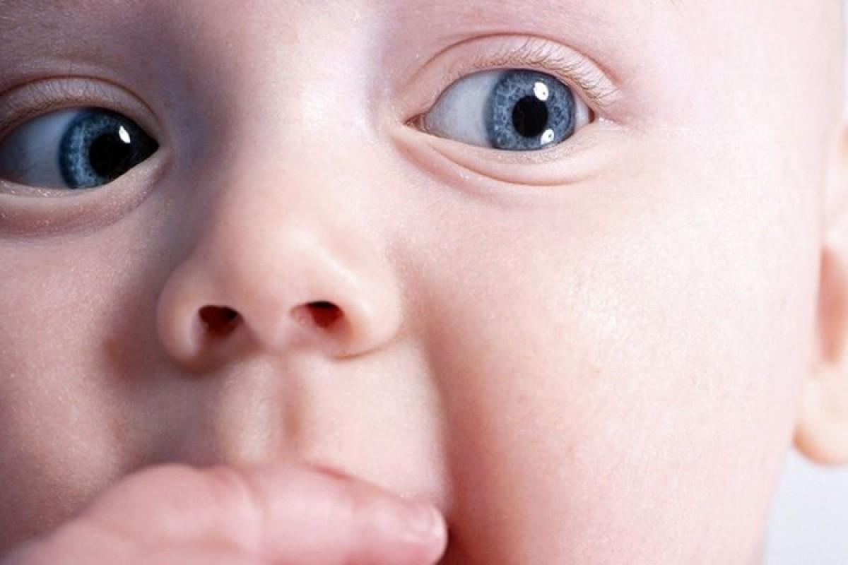 Το μωρό μου διαγνώστηκε με γλαύκωμα
