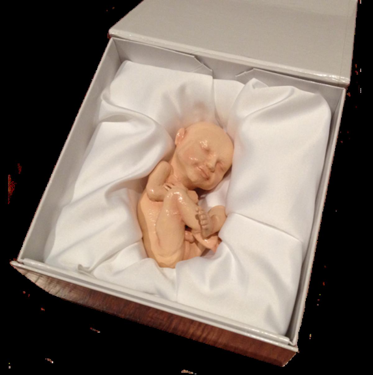 Εσείς θα αγοράζατε ποτέ μια 3D εκτύπωση του εμβρύου σας;