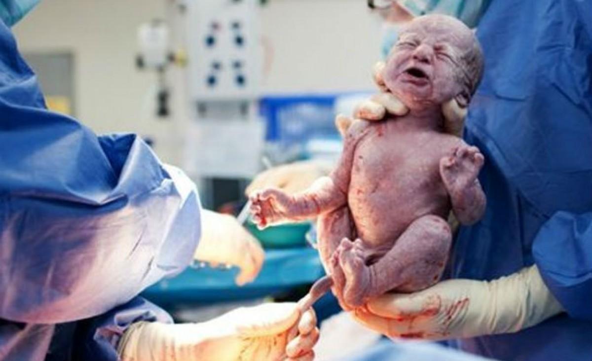 ΠΟΥ: Οι τοκετοί με καισαρική είναι πολύ συχνοί σε κάποιες χώρες και πολύ σπάνιοι σε άλλες