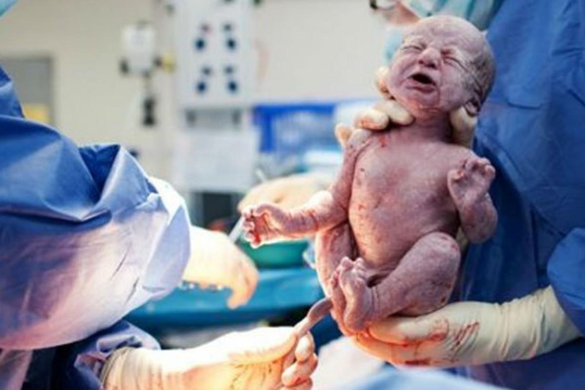Δεν μπορώ να γεννήσω με φυσιολογικό τοκετό. Αυτό με κάνει λιγότερο γυναίκα;