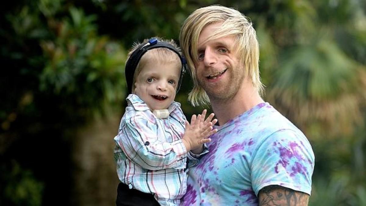 Αυτός ο άντρας αποτελεί πηγή έμπνευσης για μικρά παιδιά που πάσχουν από το ίδιο σύνδρομο