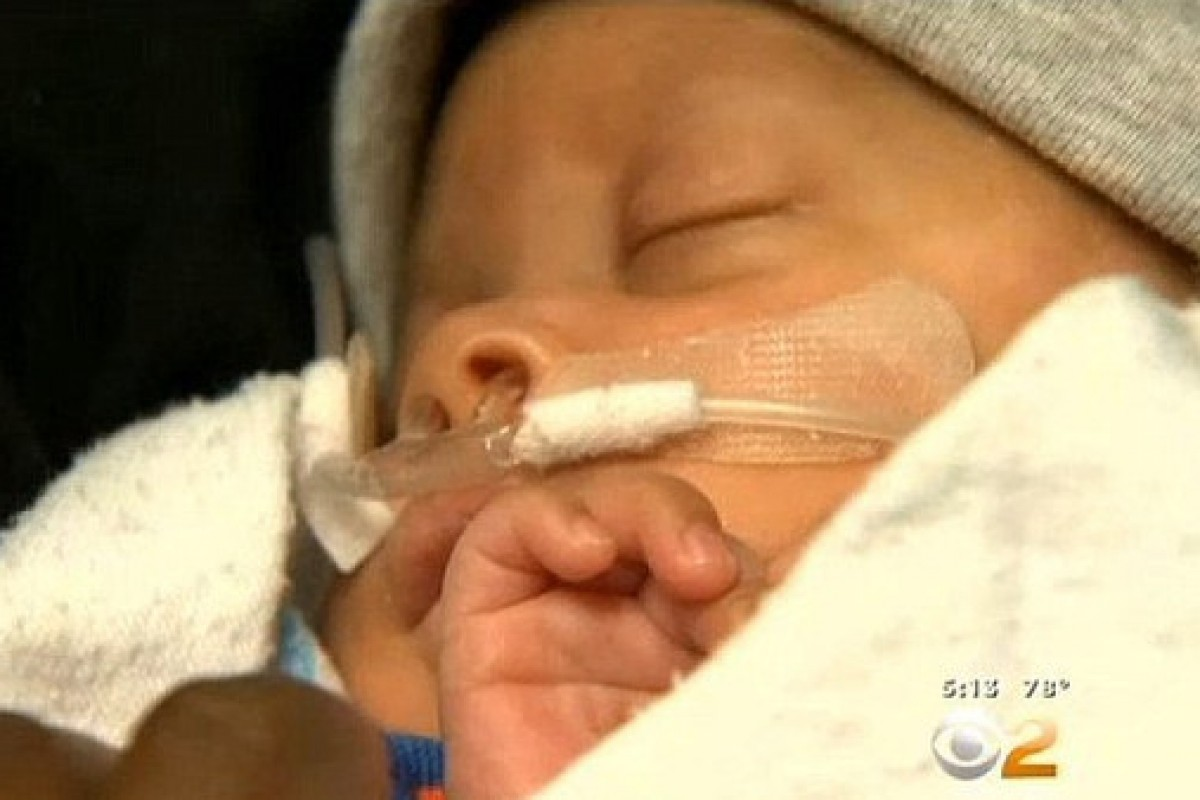 Δείτε το μωρό που γεννήθηκε μαζί με τον αμνιακό του σάκο εκπλήσσοντας τους γιατρούς