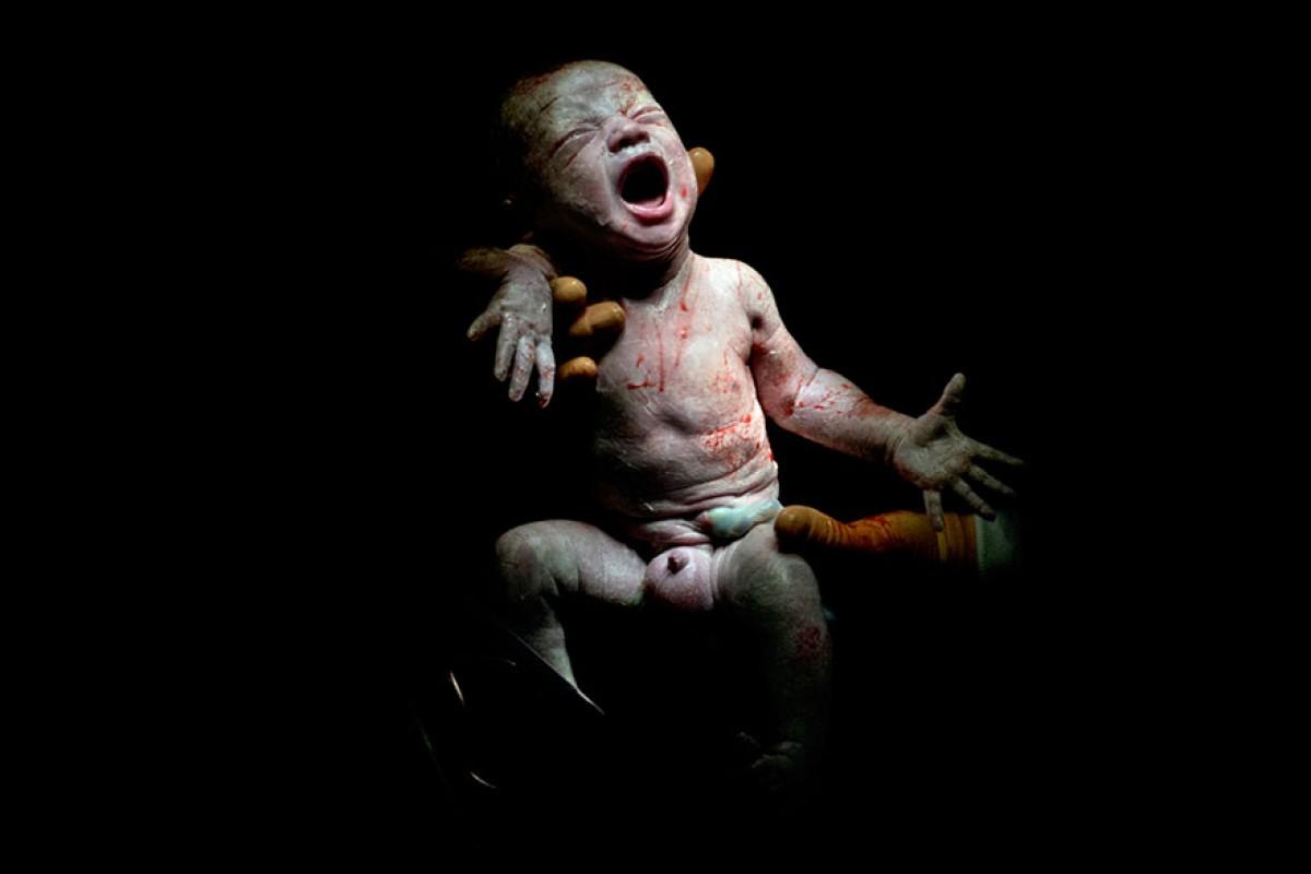 Τα πρώτα δευτερόλεπτα της ζωής τους: Φωτογραφίες νεογέννητων τη στιγμή που έρχονται στον κόσμο μας