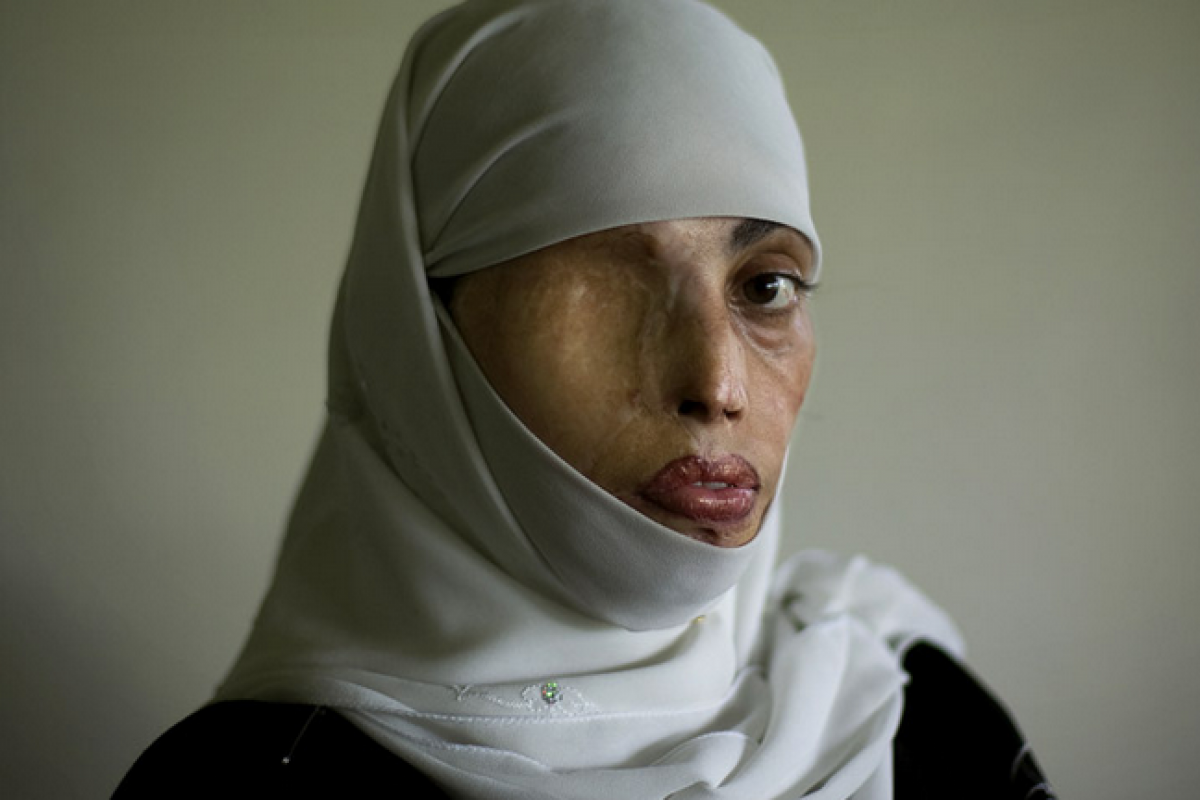 Το πρόσωπο αυτό μαρτυρά τι συμβαίνει σε γυναίκες που αρνούνται να παντρευτούν