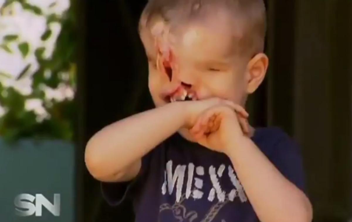 Γεννήθηκε χωρίς μάτια, μύτη και μισό σαγόνι, όμως μια επέμβαση του άλλαξε τη ζωή