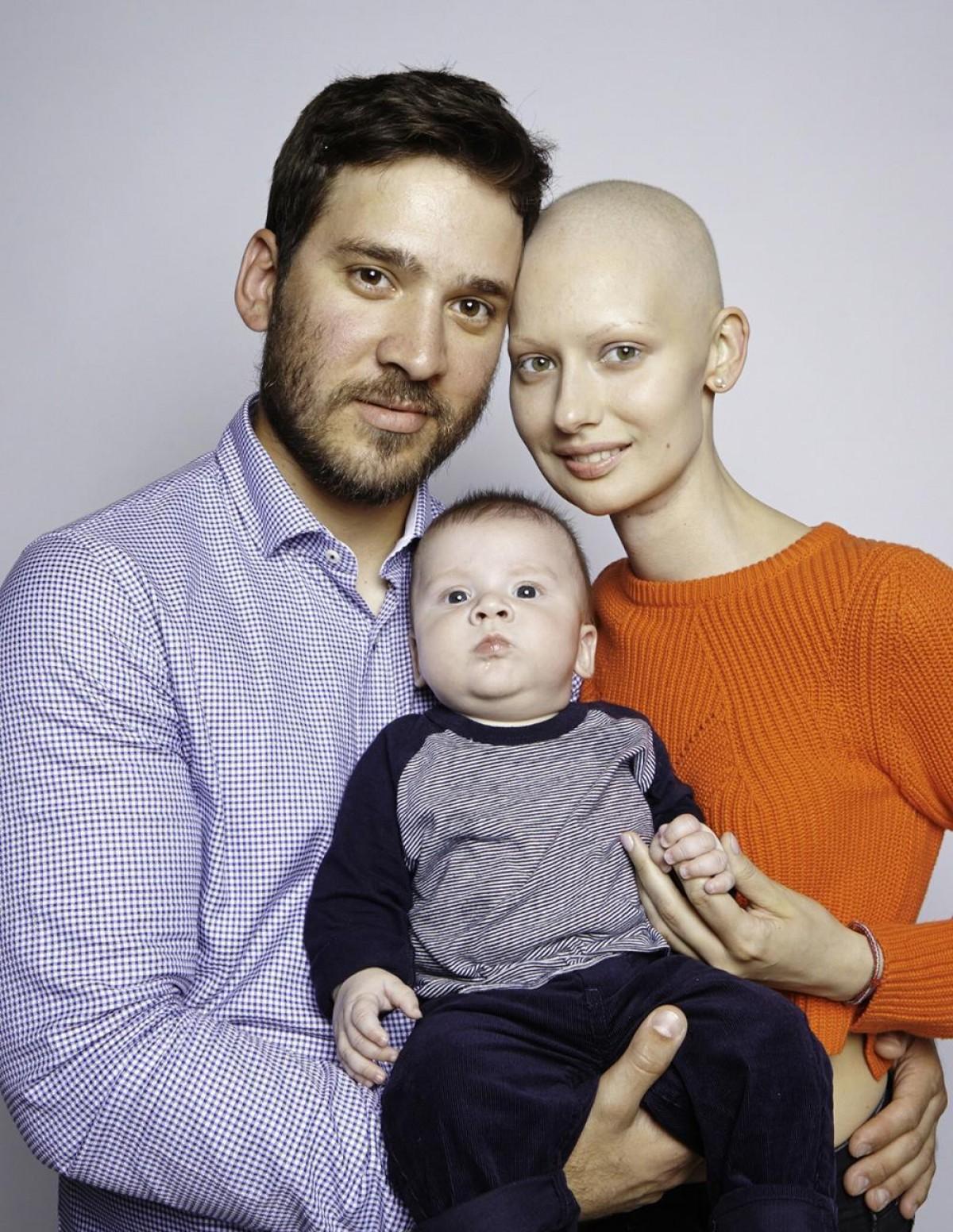 Το μοντέλο που έχασε το σαγόνι της από τον καρκίνο αλλά κράτησε το παιδί της και συνέχισε να πολεμά για την οικογένειά της
