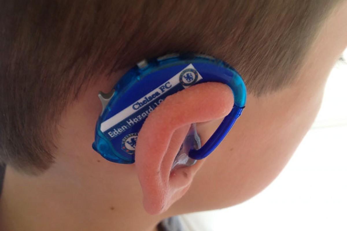 Βοηθήματα ακοής για παιδιά που διαφέρουν με τα απίθανα σχέδιά τους από μία δημιουργική μαμά