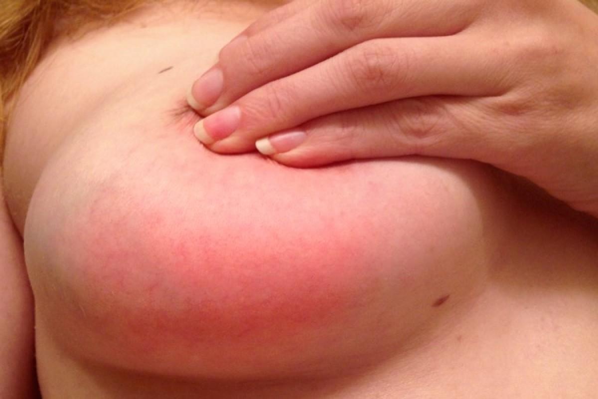 20 tips για την αντιμετώπιση της μαστίτιδας