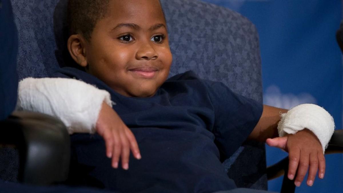 Ο Zion είναι το πρώτο παιδί στον κόσμο που υποβλήθηκε σε διπλή μεταμόσχευση χεριών