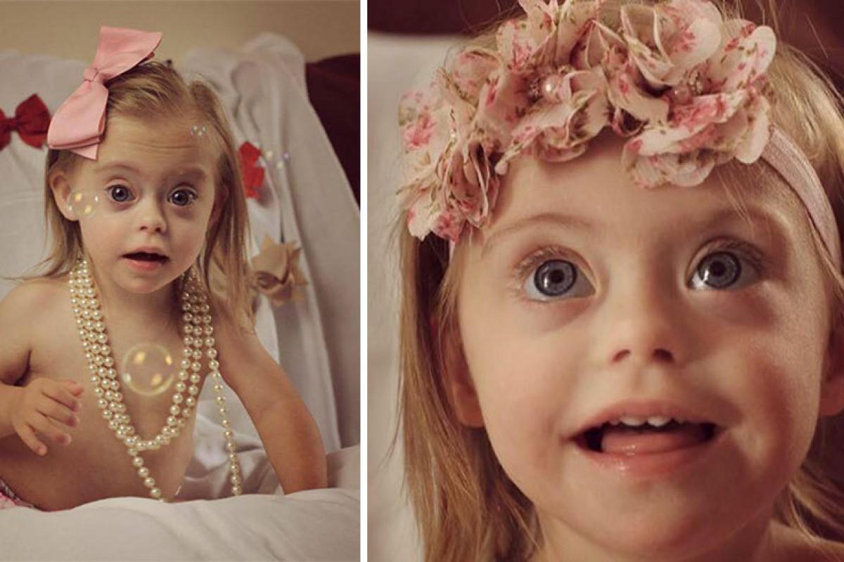 Είναι 2 ετών, έχει σύνδρομο Down κι έγινε μοντέλο χάρη στο παιχνιδιάρικο χαμόγελό της