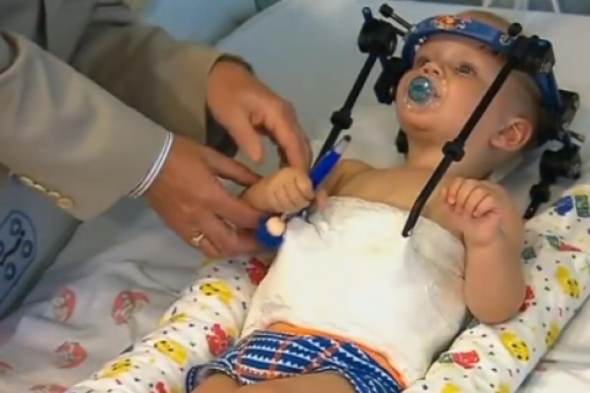 Βρέφος υπέστη εσωτερικό αποκεφαλισμό, όμως οι γιατροί κατάφεραν να «ξανακολλήσουν» το κεφάλι του