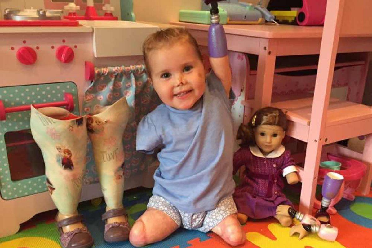 Έχασε χέρια και πόδια εξαιτίας της μηνιγγίτιδας. Σήμερα έχει μια κούκλα που της μοιάζει!