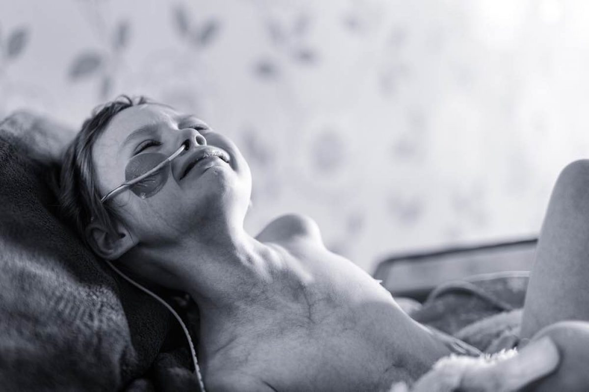 «Αυτό είναι το αληθινό πρόσωπο του καρκίνου!» | Ένας πατέρας μοιράζεται μια συγκλονιστική φωτογραφία από τις τελευταίες μέρες της κόρης του που παλεύει με τον καρκίνο