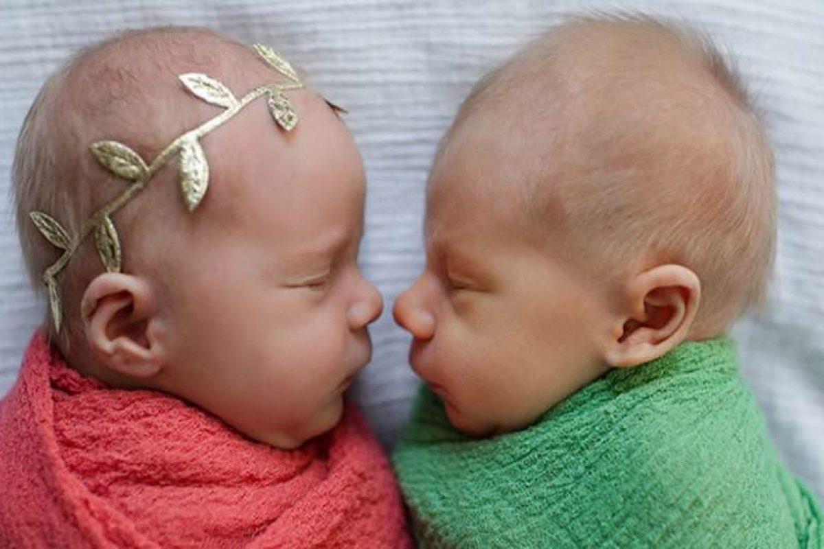 Φωτογράφισαν τα δίδυμα μωρά τους λίγο πριν χάσουν το ένα για πάντα…