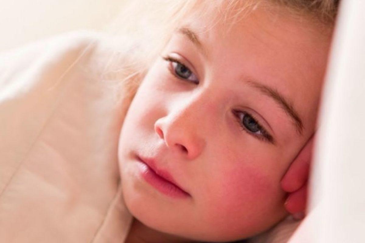 """Παιδικές ασθένειες: Τι πρέπει να ξέρετε για την """"πέμπτη νόσο"""" (παρβοϊός)"""