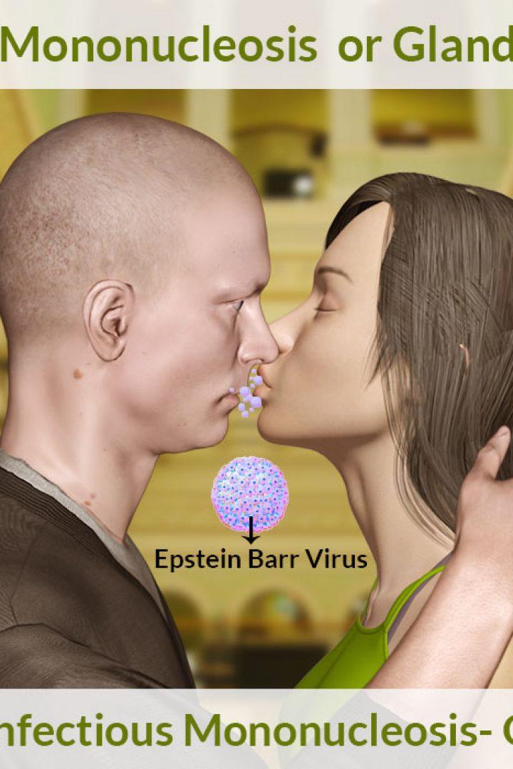 Λοιμώδης Μονοπυρήνωση ( η ασθένεια του φιλιού  )