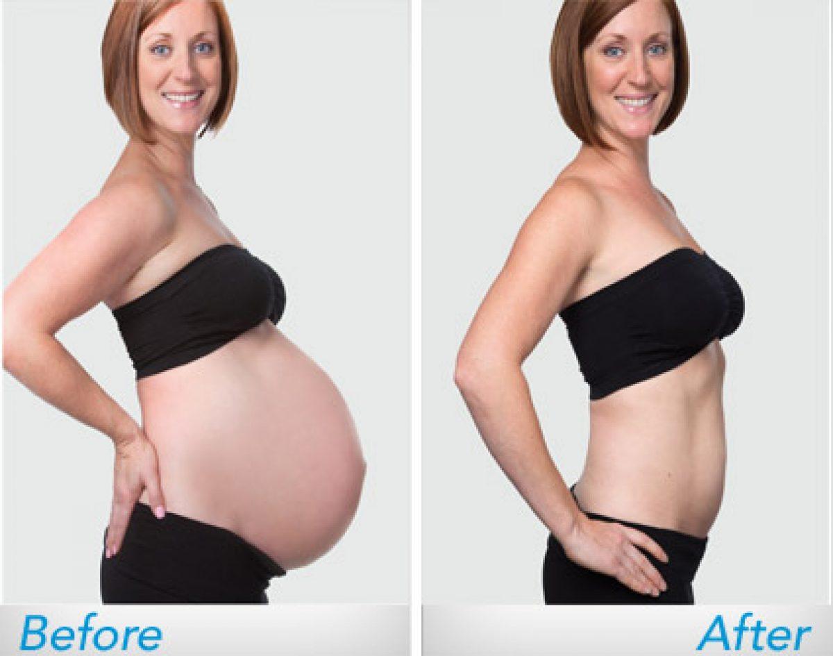 Πώς θα φύγει η κοιλίτσα της γέννας με απλό και θνητό τρόπο;;;
