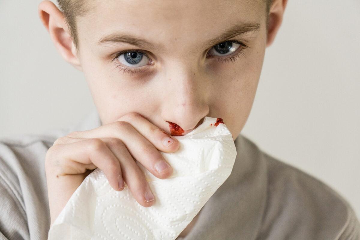 Αίμα από την μύτη: Πώς σταματάει – Τι λάθη κάνετε κάθε φορά