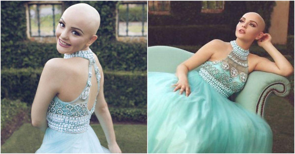 Υποκλινόμαστε…. 17χρονη καρκινοπαθής πρότυπο: «Ο καρκίνος δεν με εμποδίζει να είμαι πριγκίπισσα»