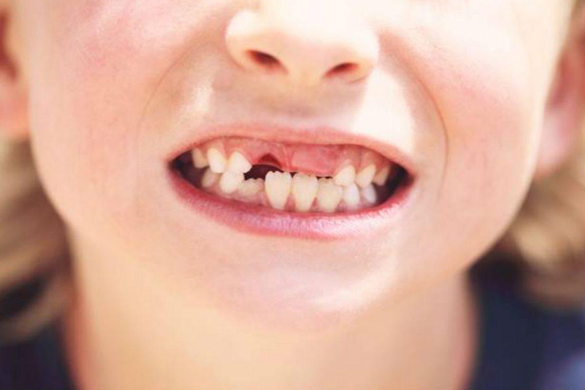 Γιατί οι γονείς δεν πρέπει να πετάνε τα παιδικά δόντια