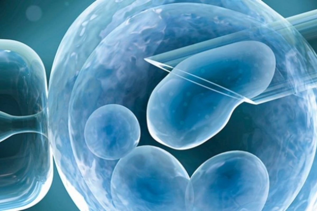 Εξωσωματική Γονιμοποίηση και Υπογονιμότητα