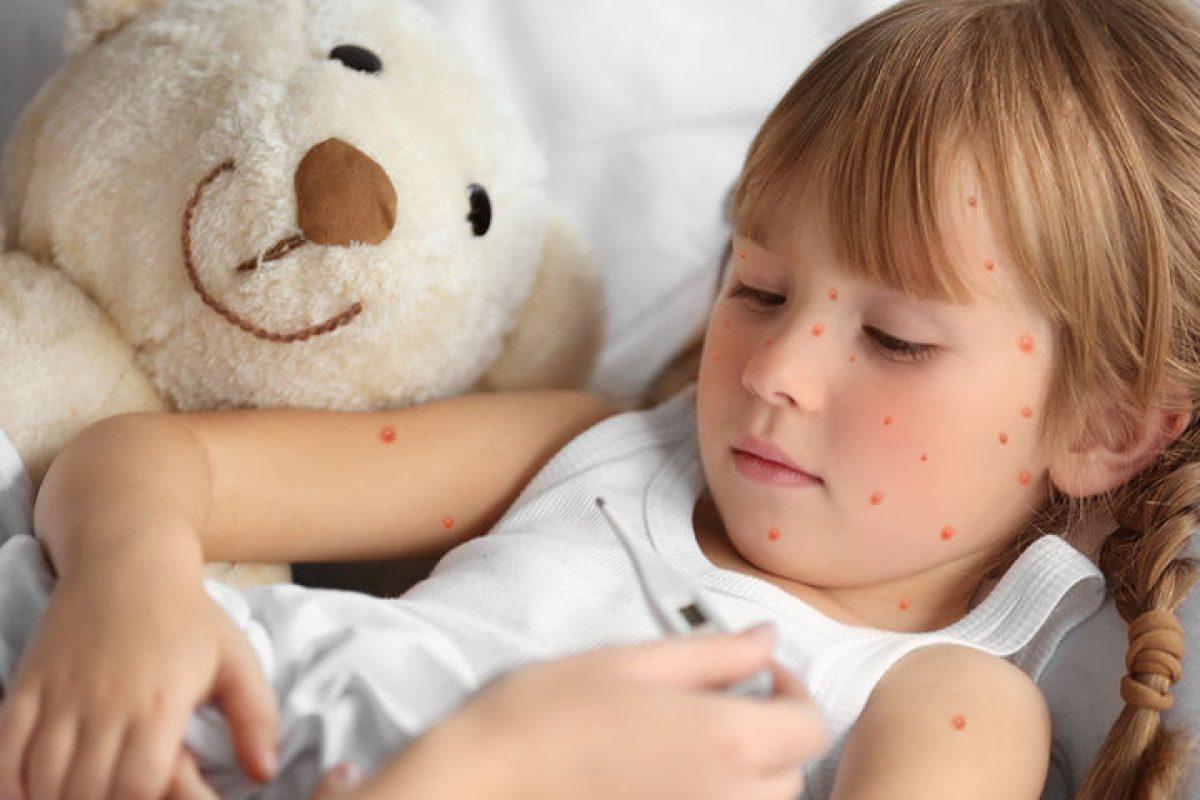 Τι πρέπει να κάνετε αν το παιδί σας κολλήσει ανεμοβλογιά