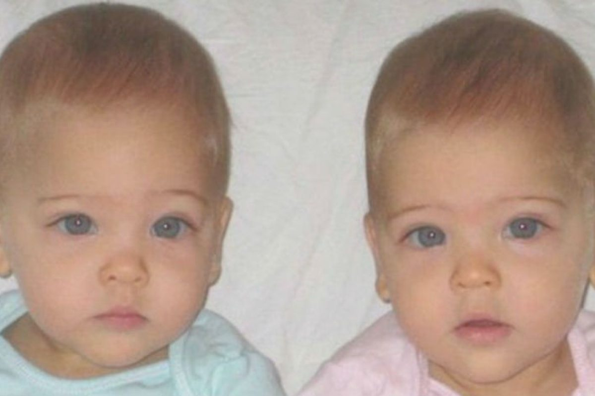 Οι πιο όμορφες δίδυμες στον κόσμο έγιναν 9 ετών και μοιάζουν σαν άγγελοι