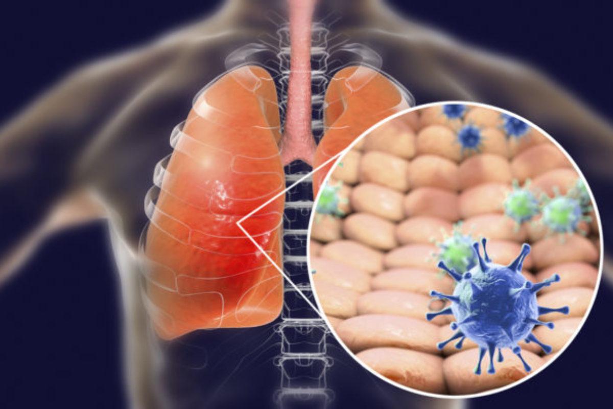 Κορονοϊός: Οι καλύτερες τροφές για τους πνεύμονες εν μέσω της πανδημίας COVID-19