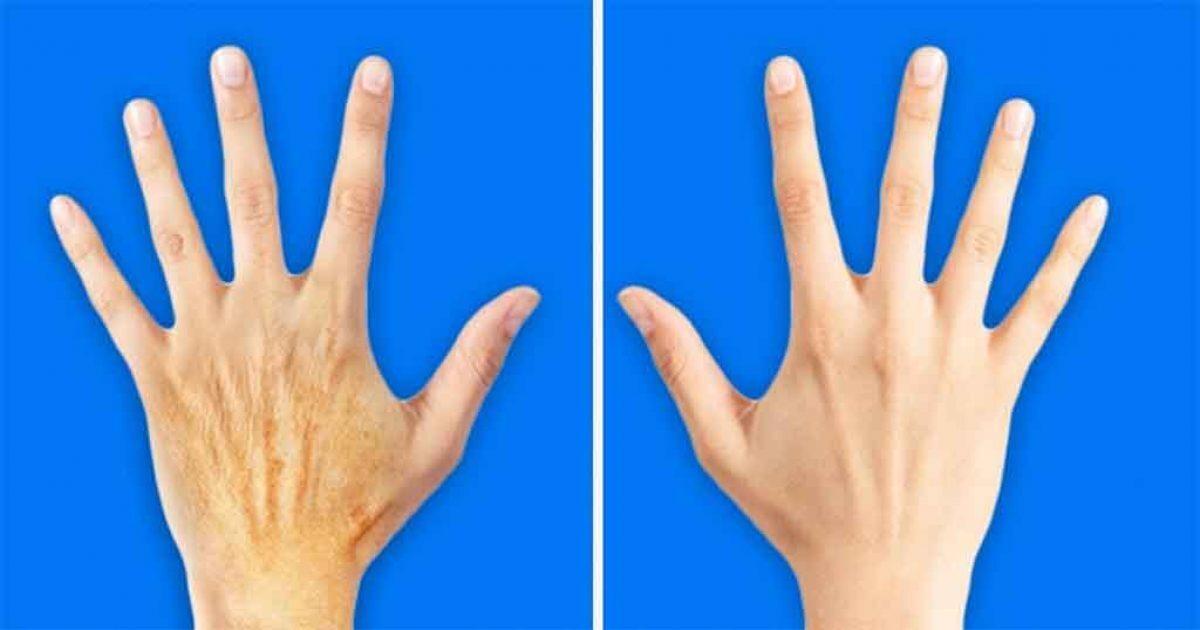 5 μυστικά για να κάνετε τα χέρια σας 10 χρόνια νεότερα