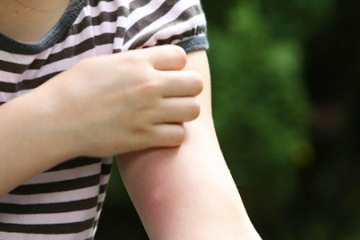 Χρήσιμες συμβουλές αν τσιμπήσει έντομο το παιδί
