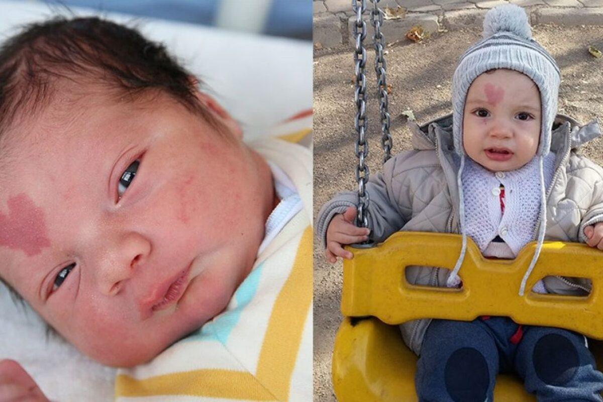 Μωράκι γεννήθηκε με ένα σημάδι σε σχήμα καρδιάς και όλος ο κόσμος το λατρεύει