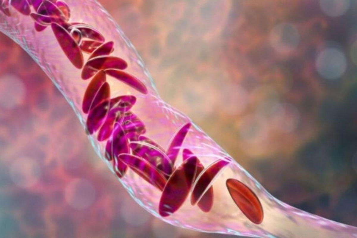 Χαμηλός αιματοκρίτης: Τι είναι και ποιες είναι οι 12 τροφές για να τον ενισχύσετε