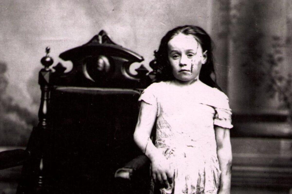 Mary Ellen Wilson: Το κορίτσι που έγινε σύμβολο κατά της παιδικής κακοποίησης